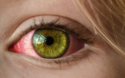 Prevent Pink Eye – Students